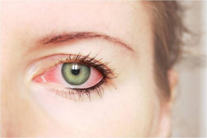 riscos-glaucoma
