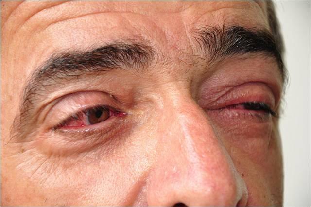 conjuntive-sintomas-tratamento