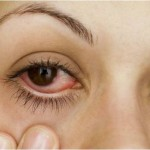 higiene-evitar-conjuntivite