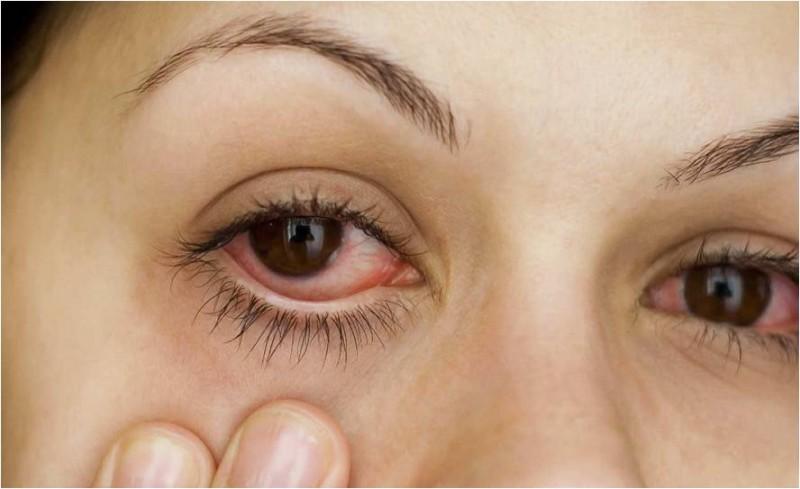 Irritacao-Olhos-Maquiagem