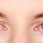 Alergia nos olhos, evite!