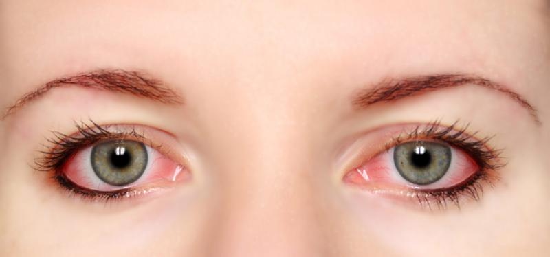 Alergia-olhos-como evitar
